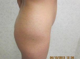 Manhattan Brazilian Butt Lift before 2